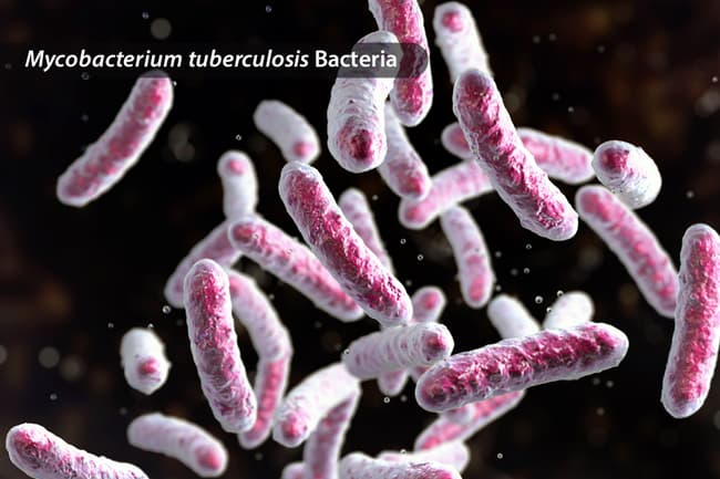 photo of mycobacterium tuberculosis