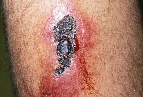 infected wound on mans leg
