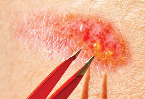 cleaning wound with tweezers