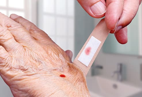 removing bandaid from senior womans hand