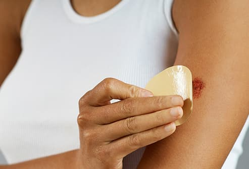 woman applying bandaid to wound on arm