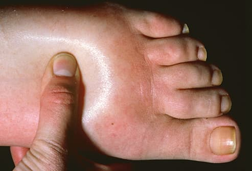 edema in left foot
