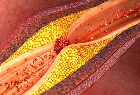 atherosclerosis illustration