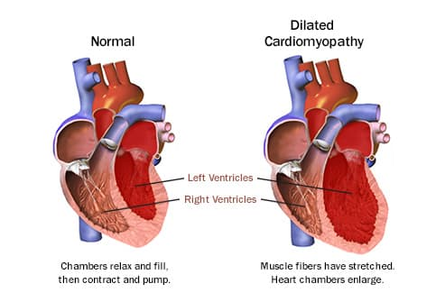 pictures how heart disease affects your body Unhealthy Heart