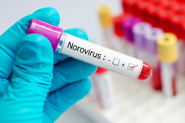 photo of norovirus