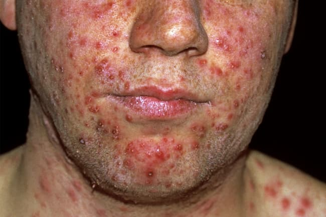 photo of chickenpox