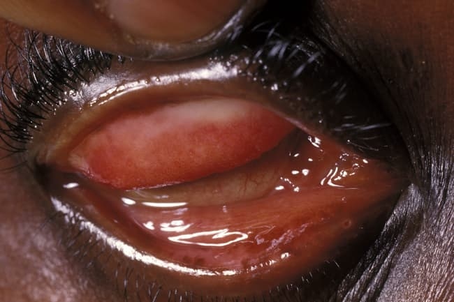 photo of conjunctivitis