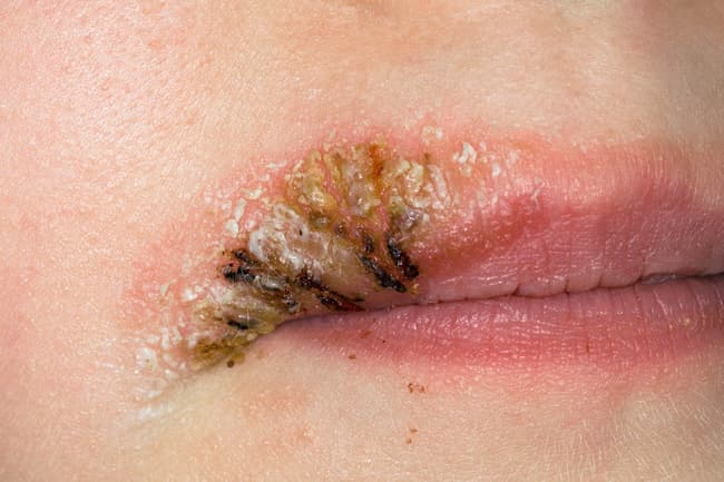 photo of impetigo