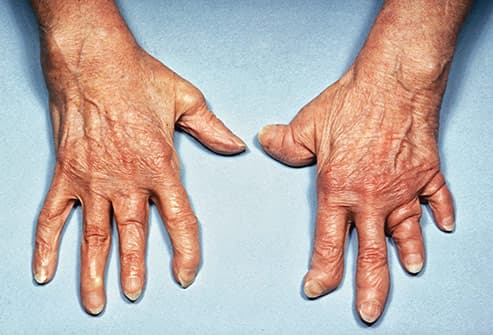 What Psoriatic Arthritis Does to Your Body Explained