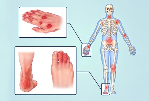 where does arthritis affect the body