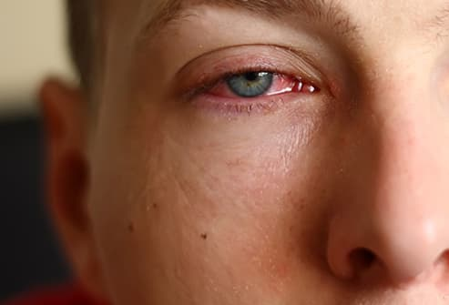 conjunctivitis close up