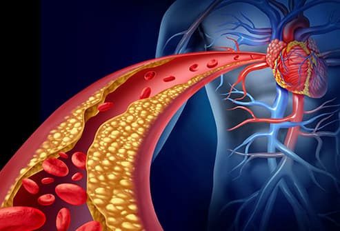 artery clogged with cholesterol