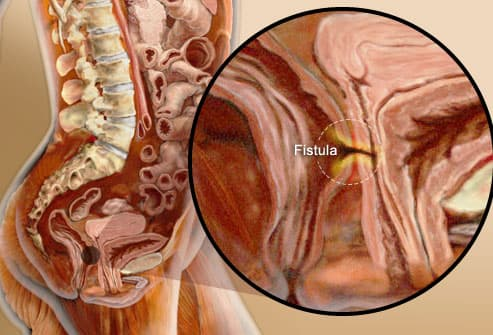 Fistula Between Intestine And Bladder