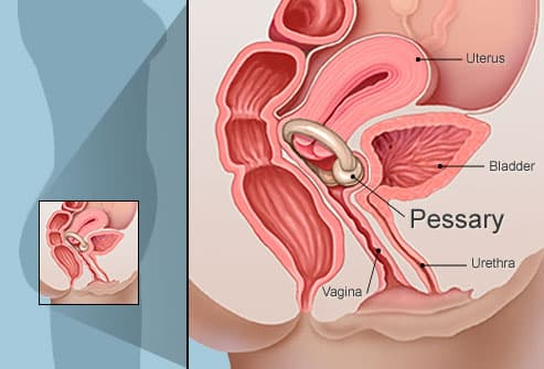Pessary to reduce urinary leakage