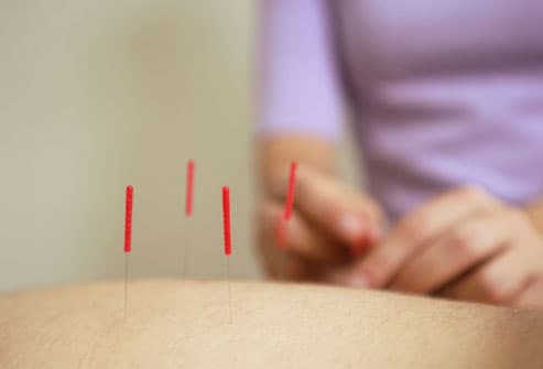 Acupuncture To Help With Infertility