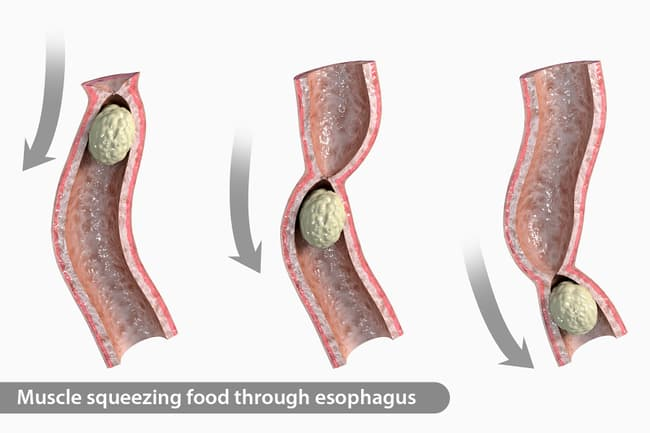 photo of food moving in esophagus