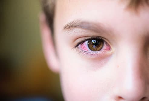 boy with red eye