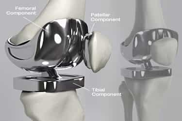 Making love with knee replacements Visual Guide To Knee Replacement