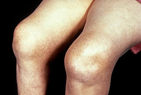 rheumatoid arthritis in knee