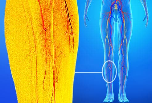 peripheral artery disease scan