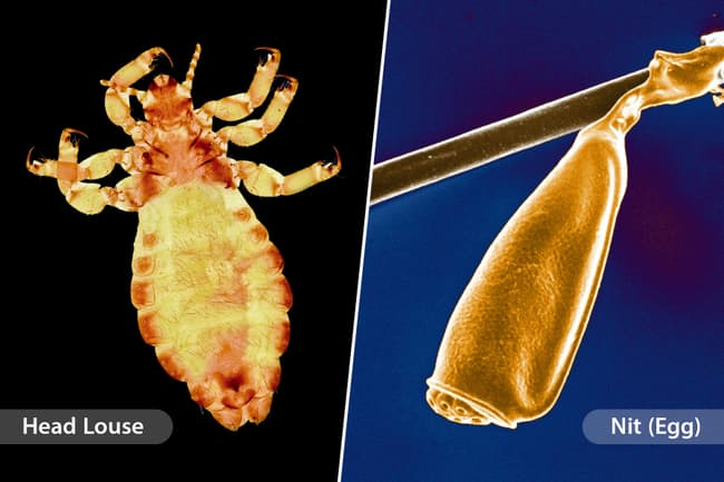 photo of louse and nit diptych