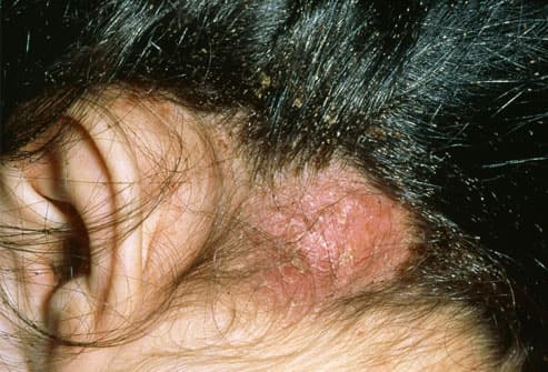 abscess on scalp infected with head lice