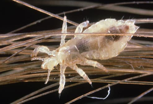 human head louse: pediculus humanus on hair