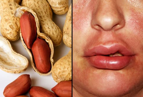 Allergic Reaction to Peanuts