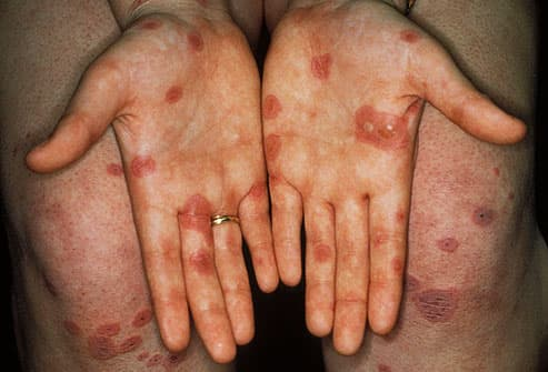 Crohn's Disease Patient with Erythema Nodosum