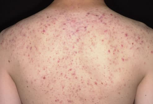Teenager With Back Acne