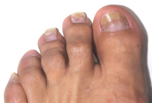Teenager With Toenail Fungus