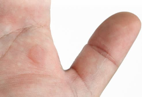 Blister On Teenagers Hand