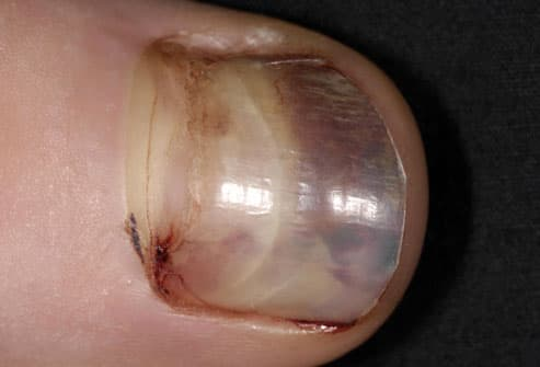 Teenager With Runners Black Toenail
