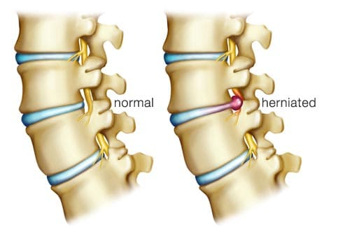 illustration of herniated disc