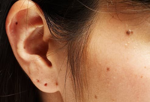 Pictures Of Skin Tags Cysts Lumps And Bumps And When To Call A Doctor