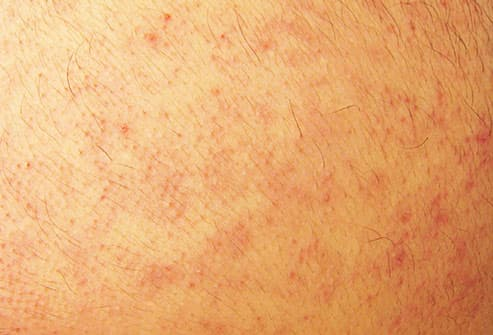 mcgrawhill_rm_photo_of_keratosis_pilaris.jpg