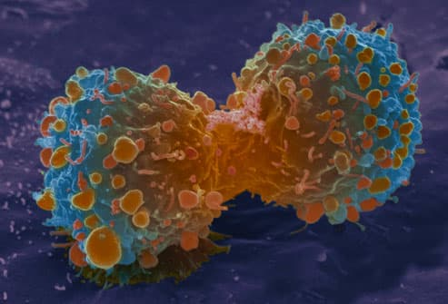 Lung Cancer Cells Dividing