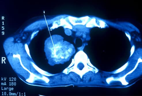 Lung Scan Indicating Cancer