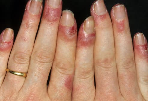 Lupus in pictures rashes where rashes happen which joints hurt lupus symptom nail changes sciox Image collections