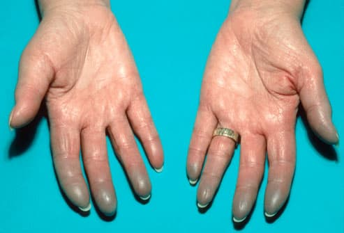 Lupus in Pictures: Rashes, Where Rashes Happen, Which Joints