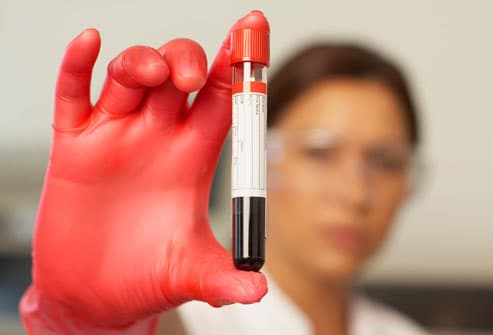Lab worker holding vial of blood