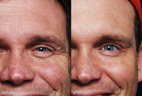 Slideshow Nip And Tuck Plastic Surgery For Men