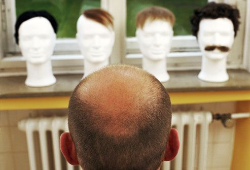 Balding man contemplating a hairpiece assortment