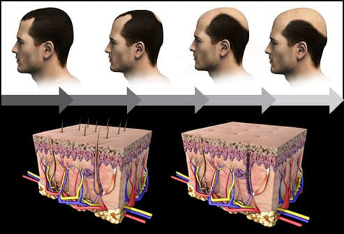 Men's Hair Loss Treatments And Solutions With Pictures Magnificent Male Pattern Baldness Causes