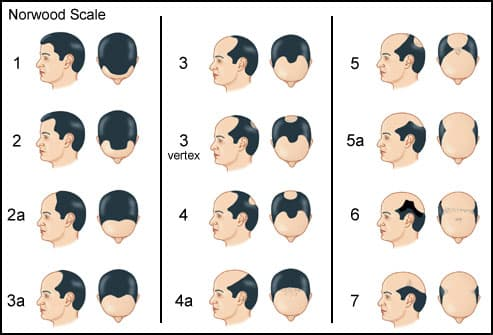 Norwood Scale showing typical hair loss patterns
