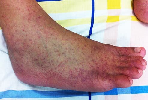 ankle swollen from chikunguya