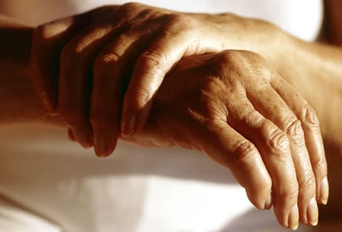 Closeup of a woman wringing her arthritic hands