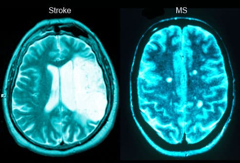 Slideshow: MS Explained In Pictures - Brain Lesions and More