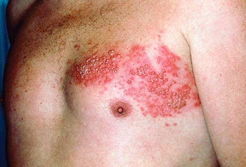 shingles blisters on chest