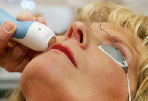 Woman Receiving Laser Facial Treatment